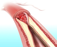 Cholesterol can cause plaque buildup in arteries
